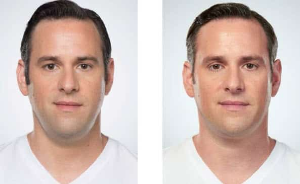 middle-age-man-before-after-kybella